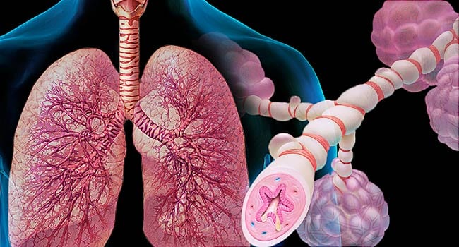 Lungs showing the causes and effects of Asthma.