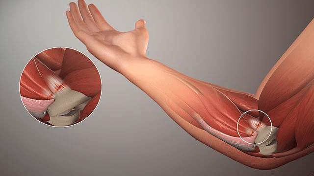 view of the tendons of the arm